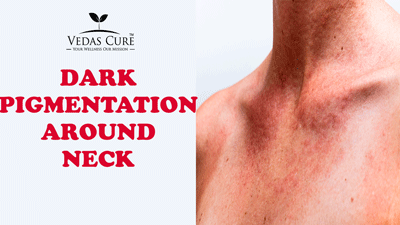 dark pigmentation around neck