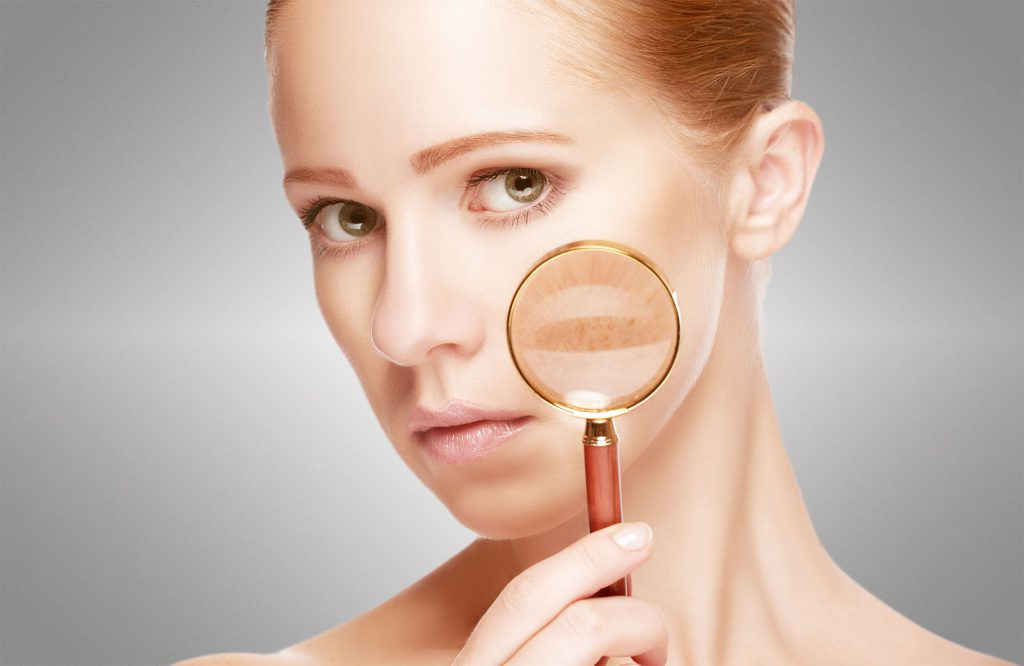 Causes of pigmentation by vedas cure