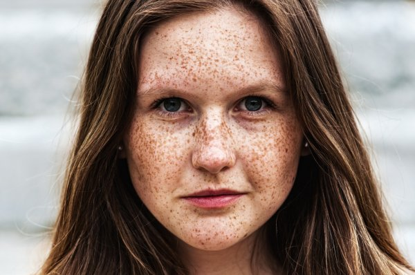 freckles by vedas cure