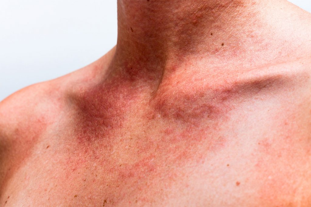 Symptoms of pigmentation by vedas cure